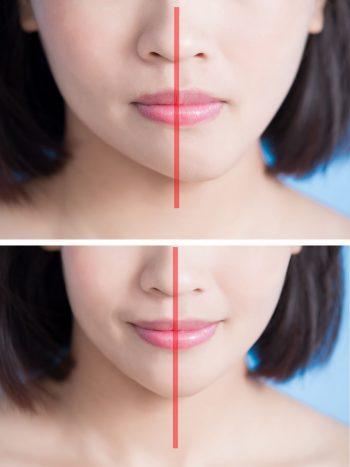 左右非対称 顔ドック 顔の歪み