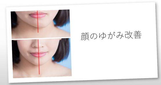顔のゆがみ20190819