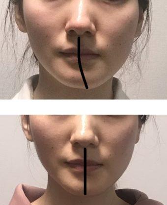 ひどい顔の歪みが治った 医療機関と提携している顔ドック