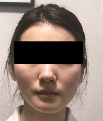 顎変形症の外科手術10年後