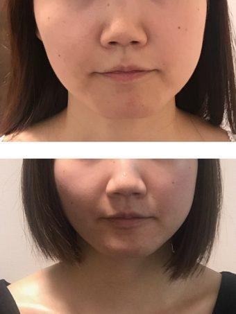 顔の歪みを整える-歯科医院で矯正