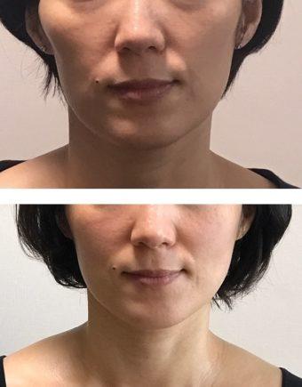 顔の歪み 矯正-歯科医院でも顔の歪みを治す