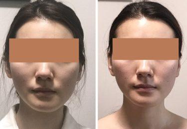 顔の歪みや顎変形もその多くは改善します