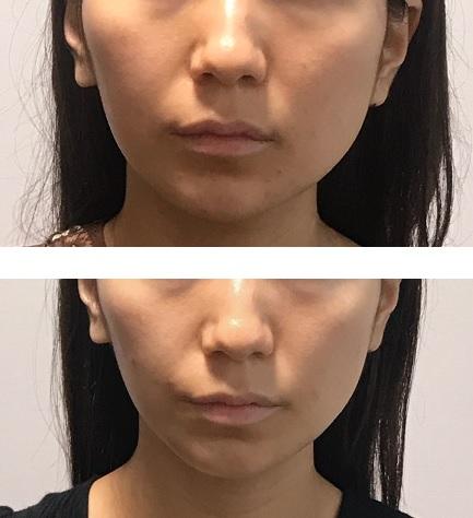 小顔矯正の効果あり。