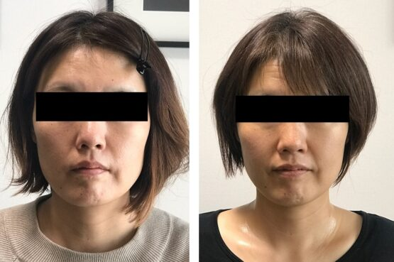 小顔矯正の効果40代