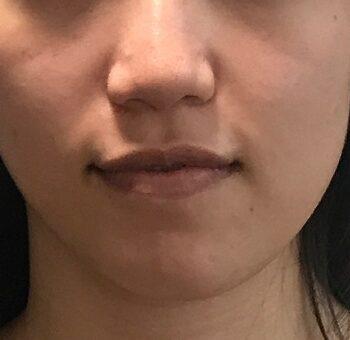 顎変形症 手術