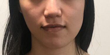 顎変形症にもおススメ!歯科で顔の歪みを治す。