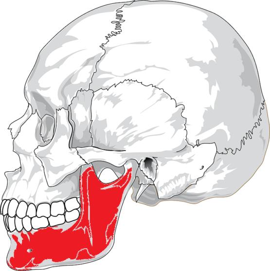 顔の歪み 下顎骨