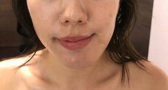 顔の歪みや顎変形症を治したい