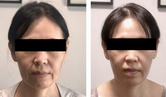 顔が長い治す方法 女