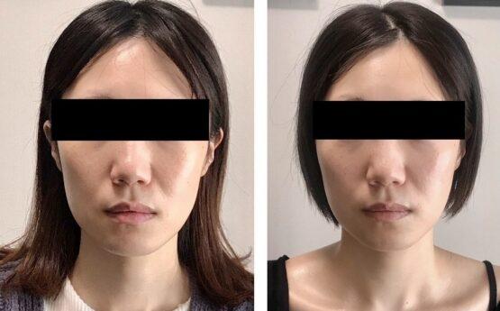 顔が長い 治す方法