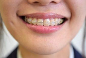 歯列矯正と顔の歪み矯正は異なります