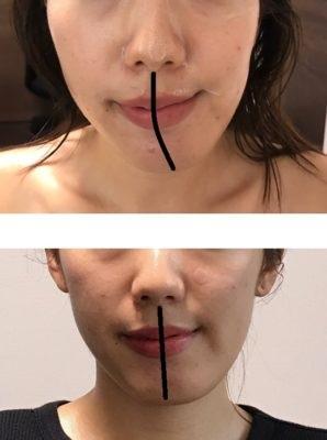 顎変形症の手術は嫌!