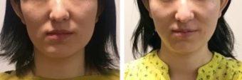 顔の歪みと顎の歪みを矯正したい