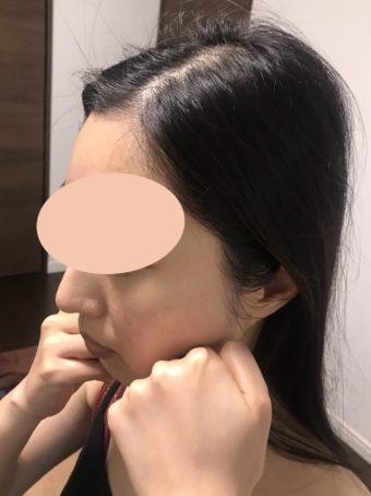 顔の歪みを整える