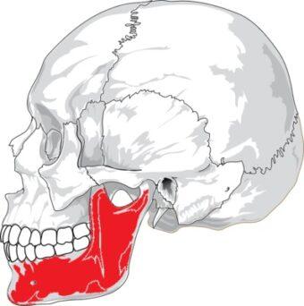 歯列と顔の歪みの関係