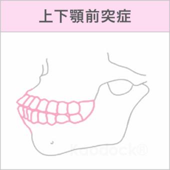 顔の歪みを矯正で治したい_上下顎前突症