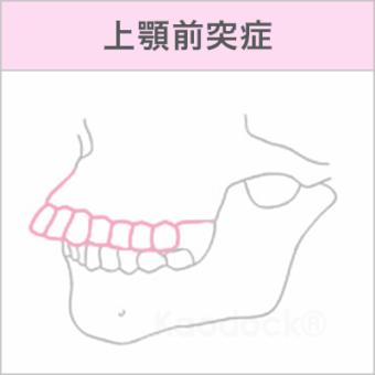顔の歪みを矯正で治したい_上顎前突症