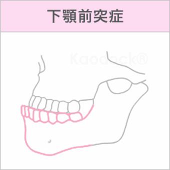 顔の歪みを矯正で治したい_下顎前突症