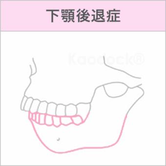 顔の歪みを矯正で治したい_下顎後退症