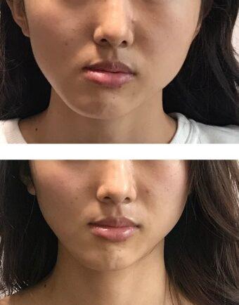 顔の歪みがすごい 顎関節症