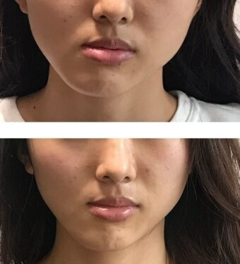 顔の歪みを整える 顎の歪みを整える