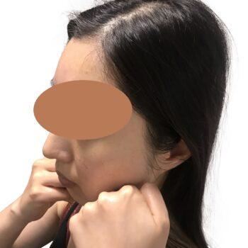 小顔矯正の効果を維持する方法