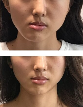 顔の歪みがすごい-医療機関と提携している顔ドック