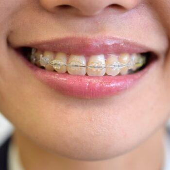 歯列矯正と顔の歪みの関係性