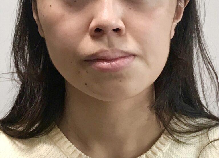 顔の歪み 左右非対称