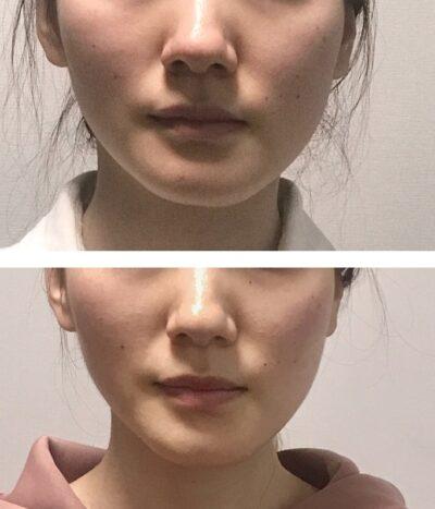 顔の歪みを矯正で治す