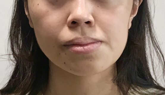 顔の歪み 病院 何科